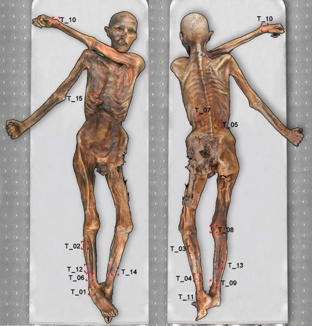 Kartierung aller Tätowierungen auf Ötzis Körper