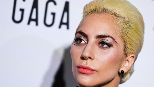 Lady Gaga bekannte sich zu Lupus.