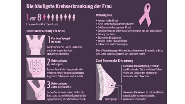 Brustkrebs Grafik Gesundheit