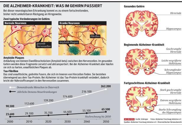 Grafik,Alzheimer Forschung Initiative e.V.…