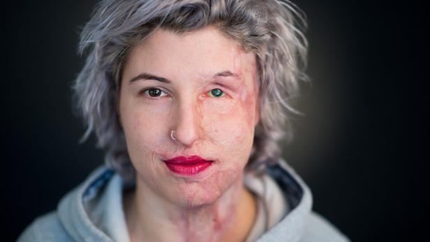 Dpa-Story - Säureopfer Vanessa zeigt Gesicht