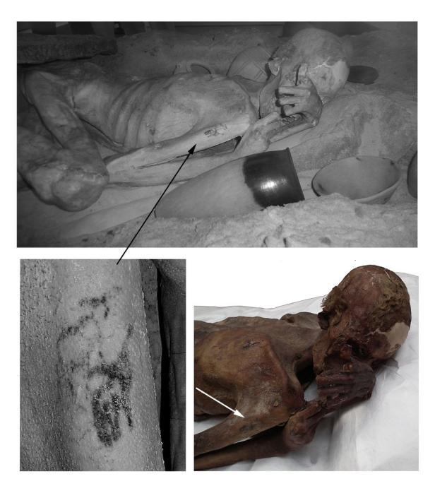 Der Mumien-Mann und seine Tätowierung