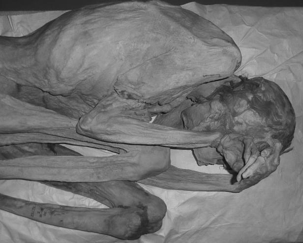 Die weibliche Mumie liegt auf der linken Seite