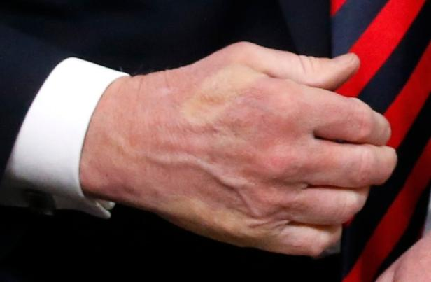 The imprint of French President Macron's thumb can be seen across back of U.S. President Trump's hand after they shook hands in a meeting at G7 Summit in Charlevoix, Canada