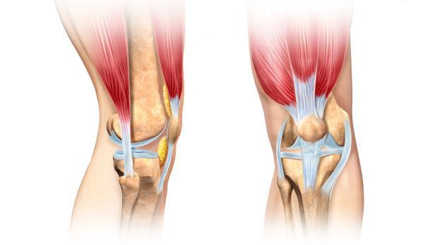 Sehnenverletzungen am Kniegelenk