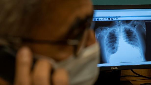 Lunge braucht lange zum Regenerieren; 290 Neuinfektionen in Österreich |  kurier.at