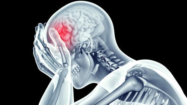 x-ray image human head with pain