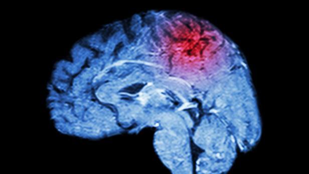 Magnetic Resonance Imaging ( MRI ) of brain and Stroke