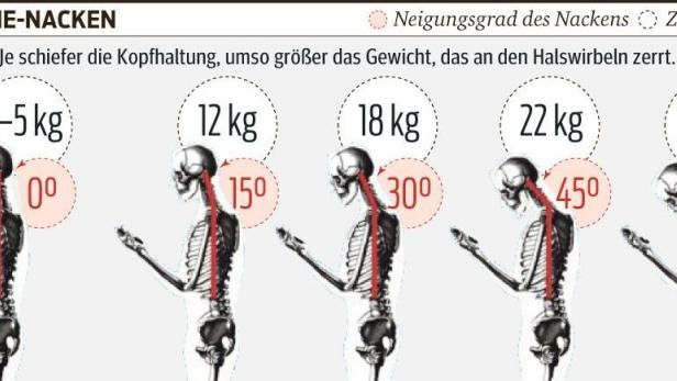 Wirbelsäulenarzt prophezeit: Smartphone-Nacken kommt | kurier.at