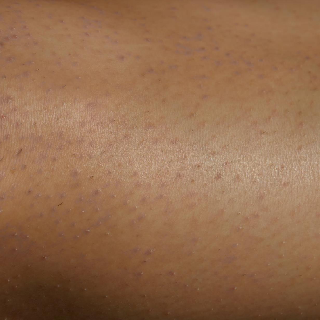 Erdbeerbeine: Was gegen dunkle Punkte auf der Haut hilft