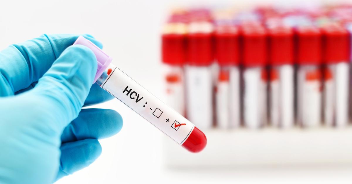 Hepatitis c partnersuche