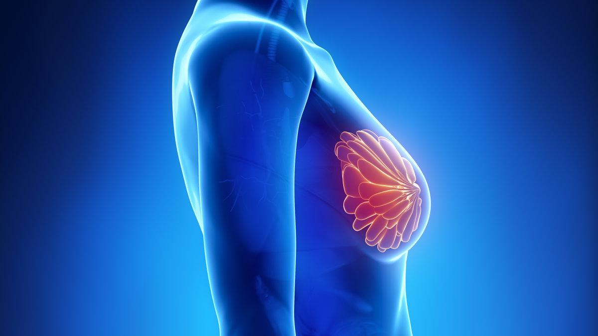 Das Brustkrebs-Risiko um 30 Prozentsenken