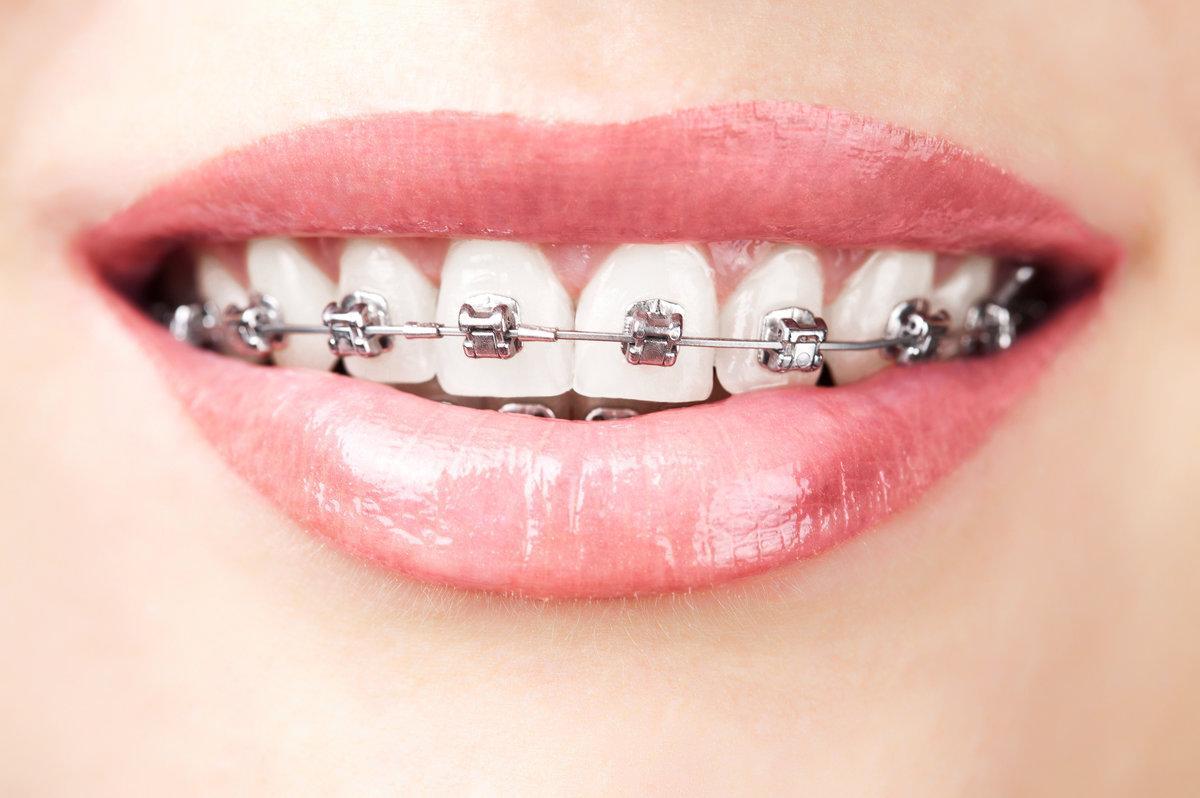 Zahnspangen nicht frühzeitig absetzen