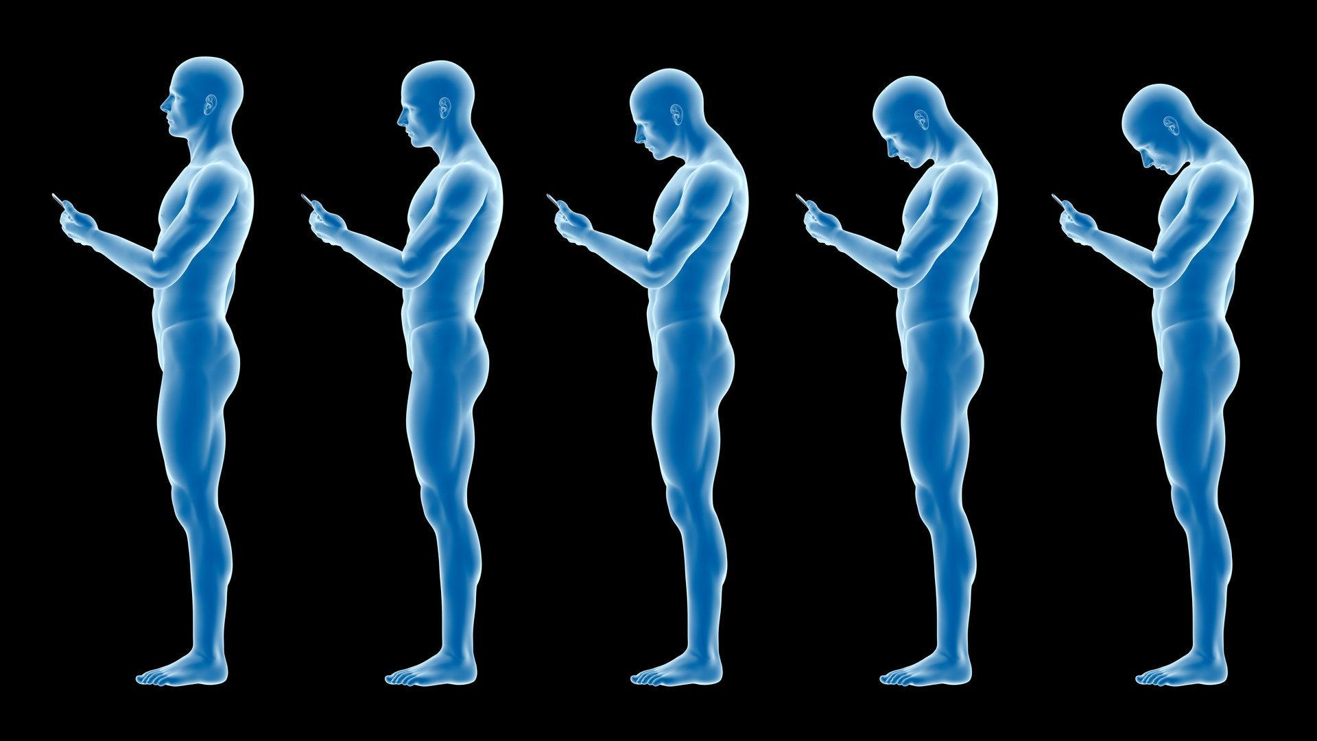 """Arzt über Smartphone-Nacken: """"Es gibt keine perfekte Haltung"""""""